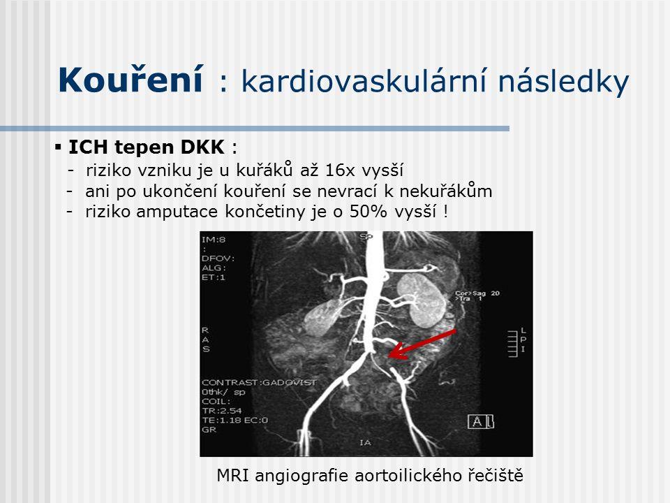Kouření : kardiovaskulární následky  ICH tepen DKK : - riziko vzniku je u kuřáků až 16x vysší - ani po ukončení kouření se nevrací k nekuřákům - riziko amputace končetiny je o 50% vysší .