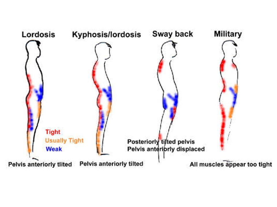 SED, LEH sed a leh jsou polohy staticky méně náročné nebo přímí kontakt s podložkou je větší a těžiště těla je níže sed je poloha při které hmotnost horní části je na dolní nebo boční straně pánve, stehna, případně bérce; při sedu je těžiště výše a při nesprávném dlouhodobém sezení dochází k poruchám zakřivení páteře leh je poloha při které je podélná osa těla v horizontální rovině nebo v rovinách mírně nakloněných; větší část trupu tlačí na podložku a menší část hmotnosti těla působí ve směru podélné osy; leh je poloha vhodná na cvičení při poruchách páteře