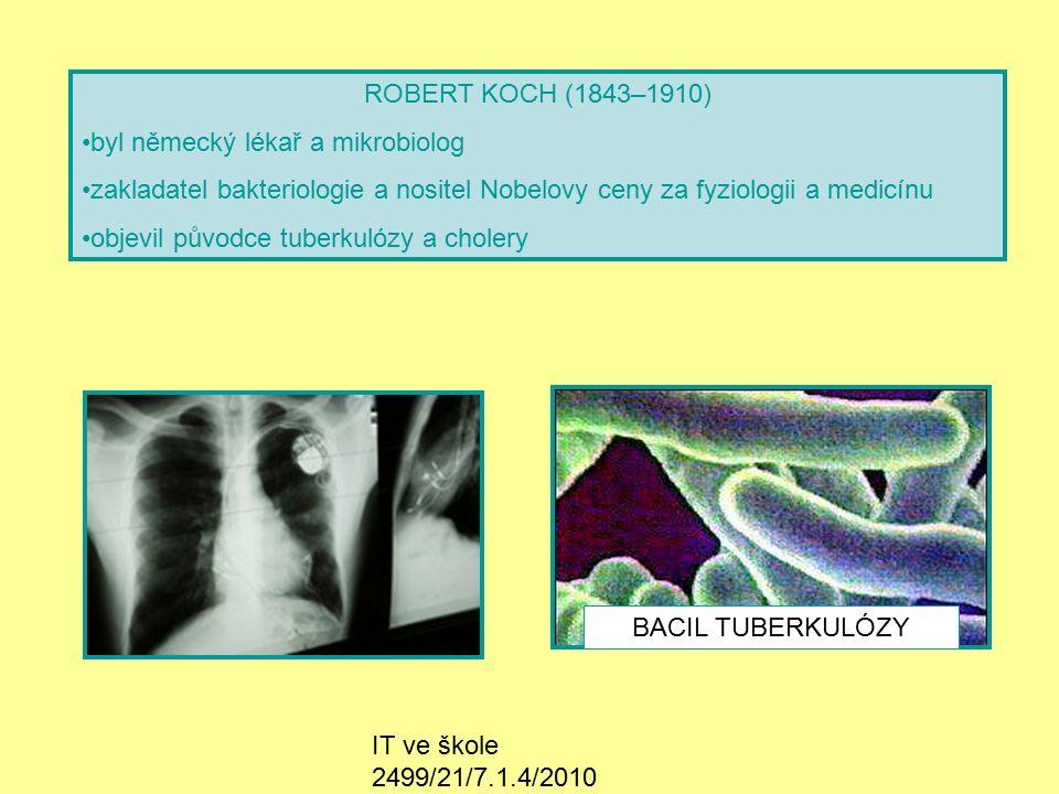 IT ve škole 2499/21/7.1.4/2010 ROBERT KOCH (1843–1910) byl německý lékař a mikrobiolog zakladatel bakteriologie a nositel Nobelovy ceny za fyziologii a medicínu objevil původce tuberkulózy a cholery BACIL TUBERKULÓZY