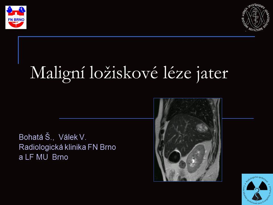 Maligní ložiskové léze jater Bohatá Š., Válek V. Radiologická klinika FN Brno a LF MU Brno