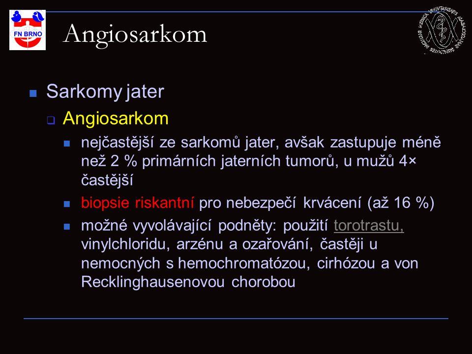 Angiosarkom Sarkomy jater  Angiosarkom nejčastější ze sarkomů jater, avšak zastupuje méně než 2 % primárních jaterních tumorů, u mužů 4× častější bio