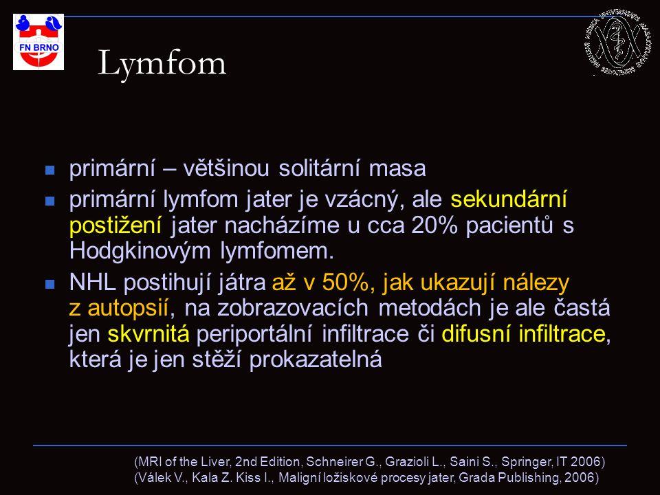 Lymfom primární – většinou solitární masa primární lymfom jater je vzácný, ale sekundární postižení jater nacházíme u cca 20% pacientů s Hodgkinovým lymfomem.