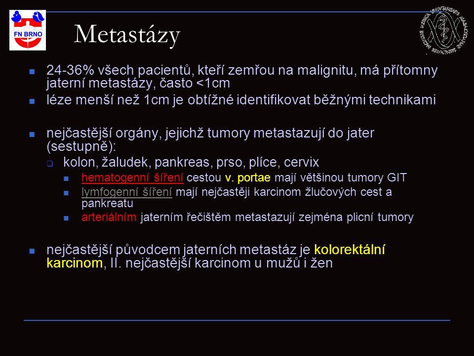 24-36% všech pacientů, kteří zemřou na malignitu, má přítomny jaterní metastázy, často <1cm léze menší než 1cm je obtížné identifikovat běžnými techni