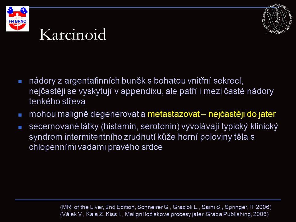 Karcinoid – jaterní metastázy