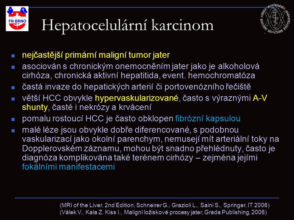 Hepatocelulární karcinom nejčastější primární maligní tumor jater asociován s chronickým onemocněním jater jako je alkoholová cirhóza, chronická aktiv