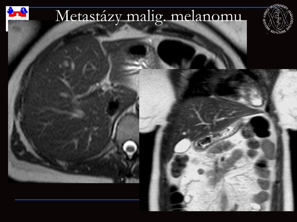 Metastázy malig. melanomu