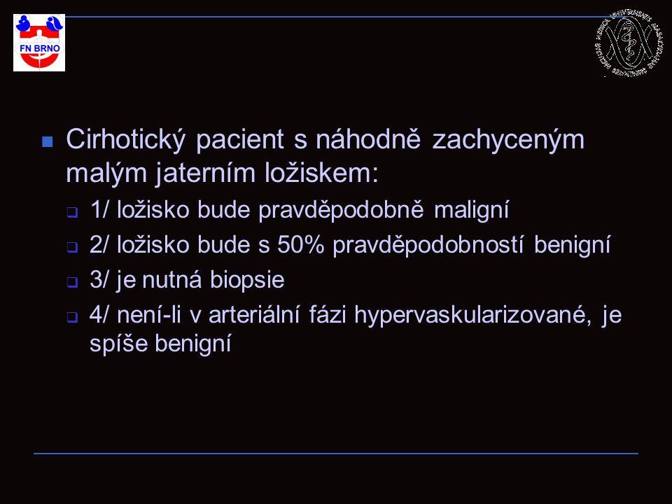 Cirhotický pacient s náhodně zachyceným malým jaterním ložiskem:  1/ ložisko bude pravděpodobně maligní  2/ ložisko bude s 50% pravděpodobností benigní  3/ je nutná biopsie  4/ není-li v arteriální fázi hypervaskularizované, je spíše benigní
