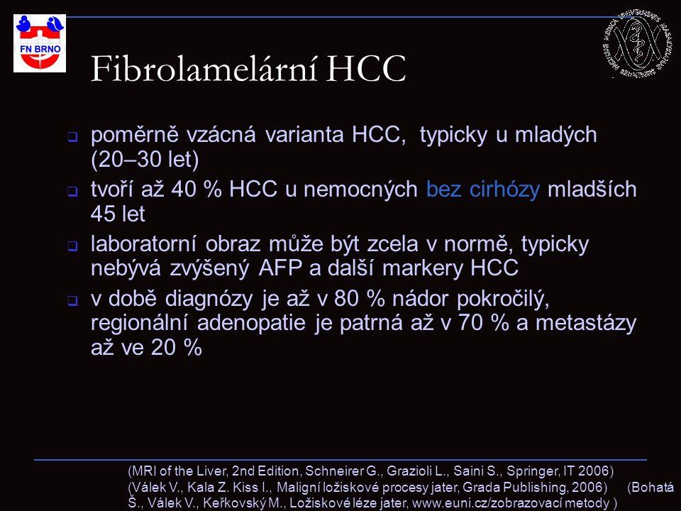 Fibrolamelární HCC  poměrně vzácná varianta HCC, typicky u mladých (20–30 let)  tvoří až 40 % HCC u nemocných bez cirhózy mladších 45 let  laborato