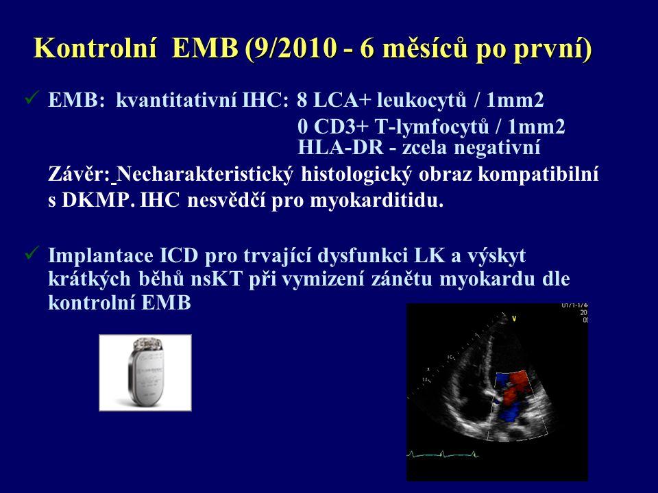 Kontrolní EMB (9/2010 - 6 měsíců po první) EMB: kvantitativní IHC: 8 LCA+ leukocytů / 1mm2 0 CD3+ T-lymfocytů / 1mm2 HLA-DR - zcela negativní Závěr: Necharakteristický histologický obraz kompatibilní s DKMP.