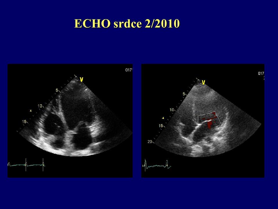 ECHO srdce 2/2010