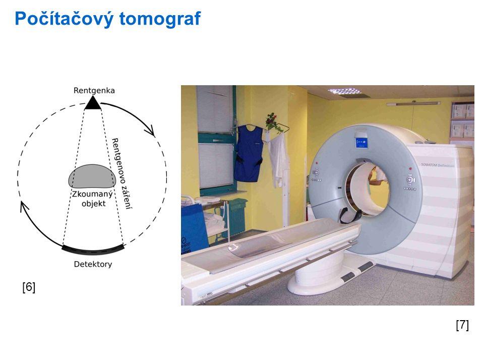 Počítačový tomograf [6] [7]