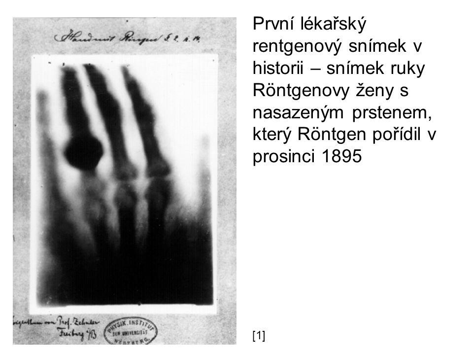 První lékařský rentgenový snímek v historii – snímek ruky Röntgenovy ženy s nasazeným prstenem, který Röntgen pořídil v prosinci 1895 [1]