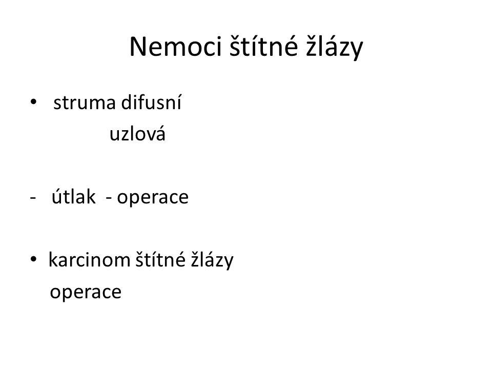 Nemoci štítné žlázy struma difusní uzlová - útlak - operace karcinom štítné žlázy operace