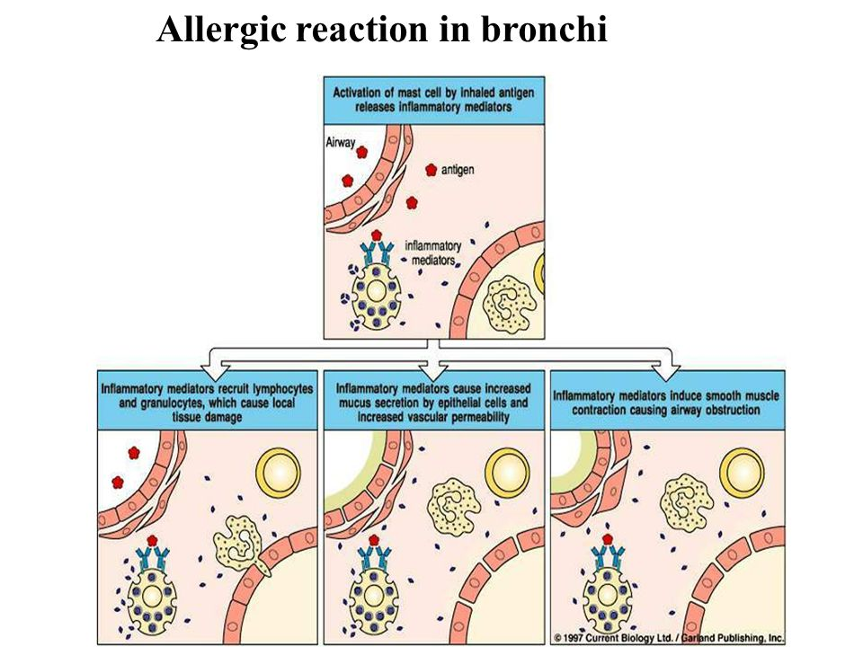 Allergic reaction in bronchi