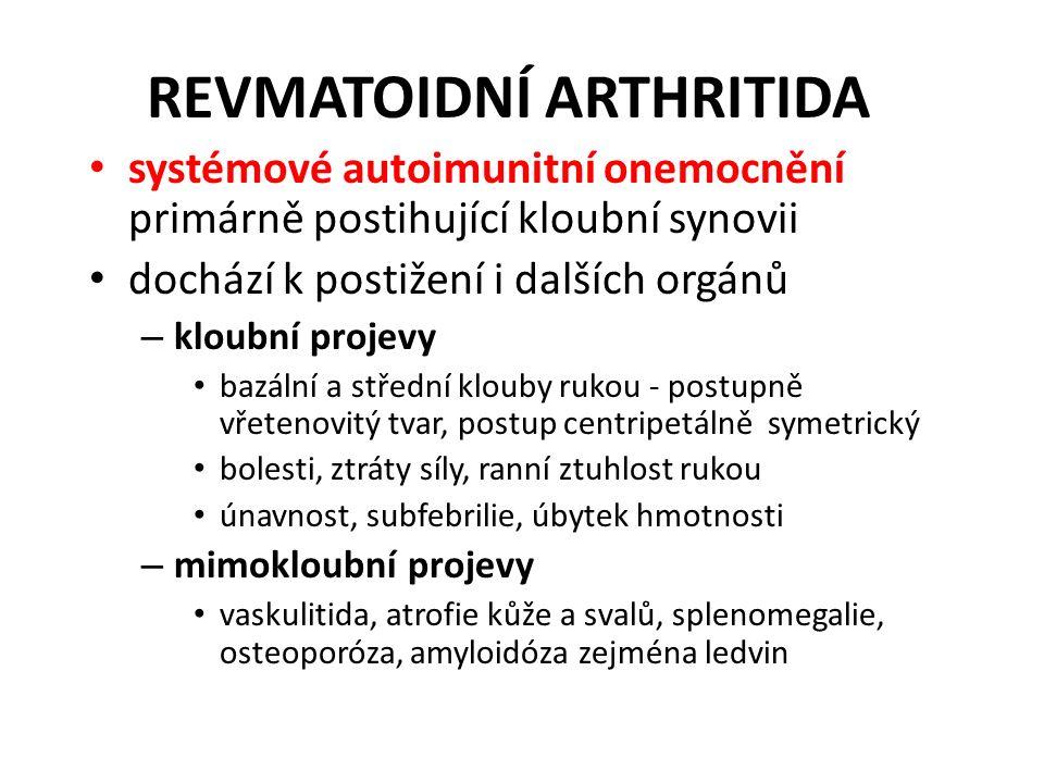 REVMATOIDNÍ ARTHRITIDA systémové autoimunitní onemocnění primárně postihující kloubní synovii dochází k postižení i dalších orgánů – kloubní projevy bazální a střední klouby rukou - postupně vřetenovitý tvar, postup centripetálně symetrický bolesti, ztráty síly, ranní ztuhlost rukou únavnost, subfebrilie, úbytek hmotnosti – mimokloubní projevy vaskulitida, atrofie kůže a svalů, splenomegalie, osteoporóza, amyloidóza zejména ledvin