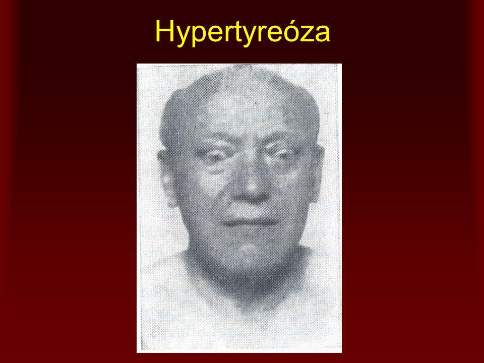 Hypertyreóza