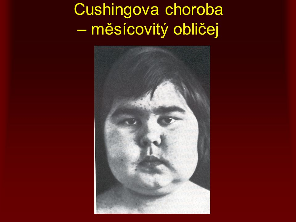 Cushingova choroba – měsícovitý obličej