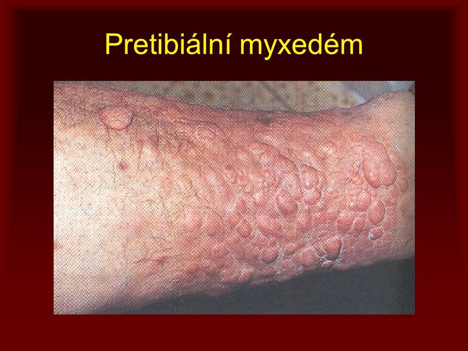 Pretibiální myxedém
