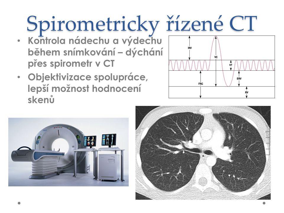 Spirometricky řízené CT Kontrola nádechu a výdechu během snímkování – dýchání přes spirometr v CT Objektivizace spolupráce, lepší možnost hodnocení skenů