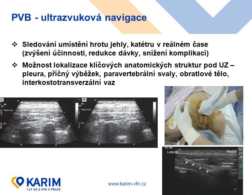www.karim-vfn.cz PVB - ultrazvuková navigace  Sledování umístění hrotu jehly, katétru v reálném čase (zvýšení účinnosti, redukce dávky, snížení kompl
