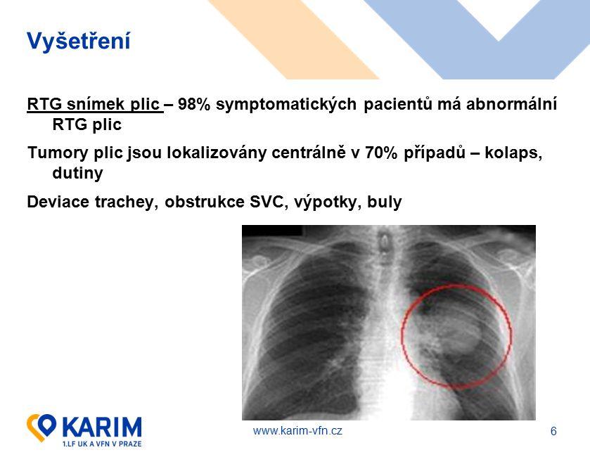 www.karim-vfn.cz Vyšetření RTG snímek plic – 98% symptomatických pacientů má abnormální RTG plic Tumory plic jsou lokalizovány centrálně v 70% případů – kolaps, dutiny Deviace trachey, obstrukce SVC, výpotky, buly 6