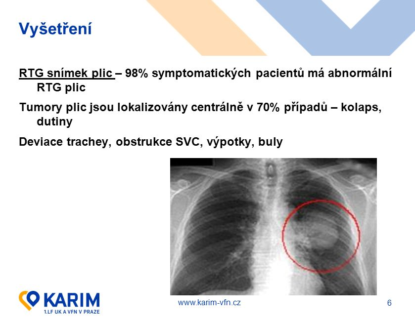 www.karim-vfn.cz Torakotomie – TEA vs.