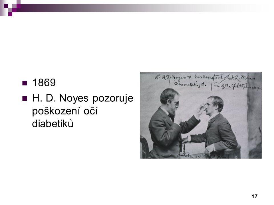 1869 H. D. Noyes pozoruje poškození očí diabetiků 17