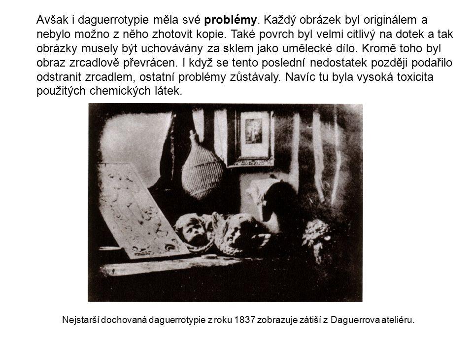 Avšak i daguerrotypie měla své problémy. Každý obrázek byl originálem a nebylo možno z něho zhotovit kopie. Také povrch byl velmi citlivý na dotek a t