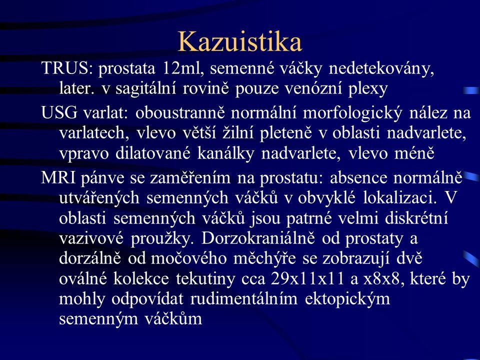 Kazuistika TRUS: prostata 12ml, semenné váčky nedetekovány, later.