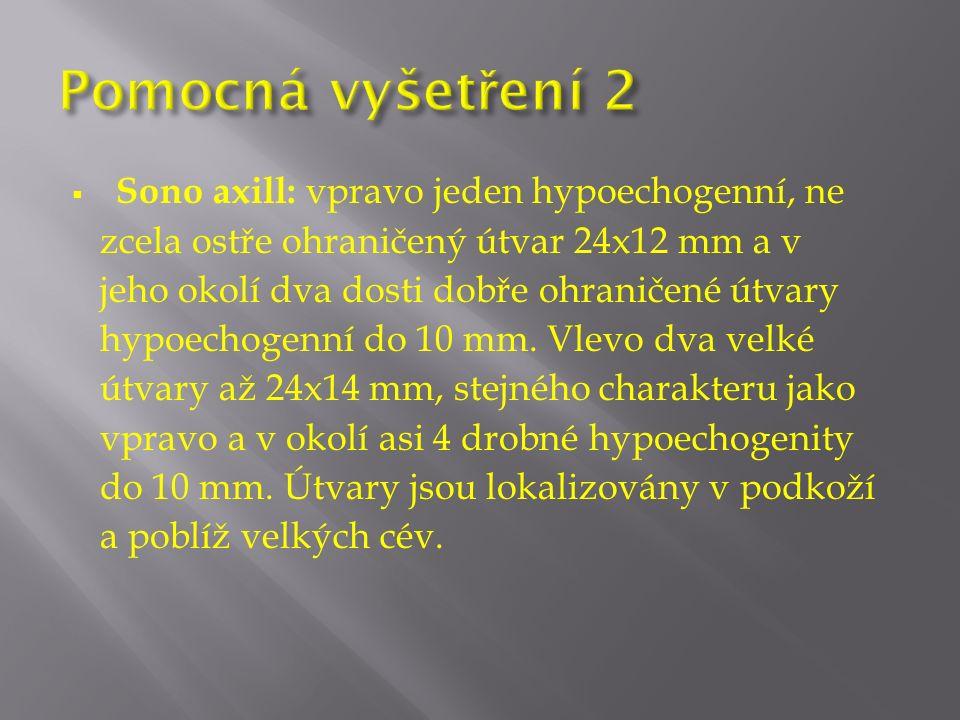  Sono axill: vpravo jeden hypoechogenní, ne zcela ostře ohraničený útvar 24x12 mm a v jeho okolí dva dosti dobře ohraničené útvary hypoechogenní do 10 mm.