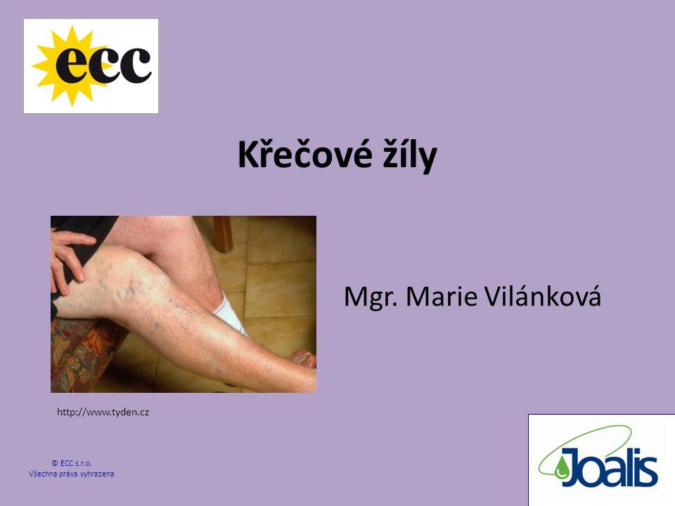 Křečové žíly Mgr. Marie Vilánková © ECC s.r.o. Všechna práva vyhrazena http://www.tyden.cz