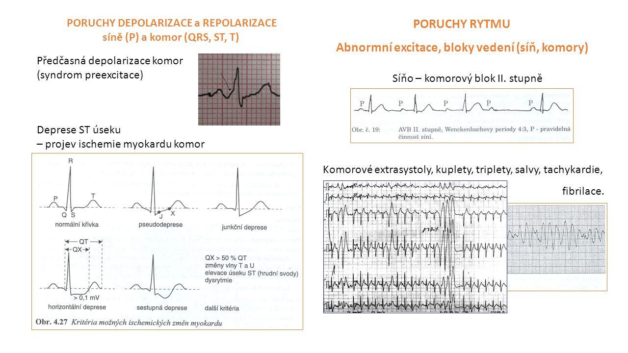 EKG Při zátěži by neměly být přítomny poruchy rytmu ani repolarizace.