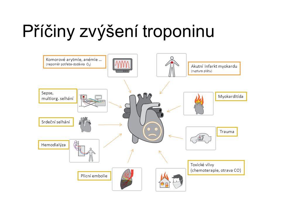 Akutní infarkt myokardu (ruptura plátu) Myokarditída Trauma Toxické vlivy (chemoterapie, otrava CO) Plicní embolie Hemodialýza Sepse, multiorg.
