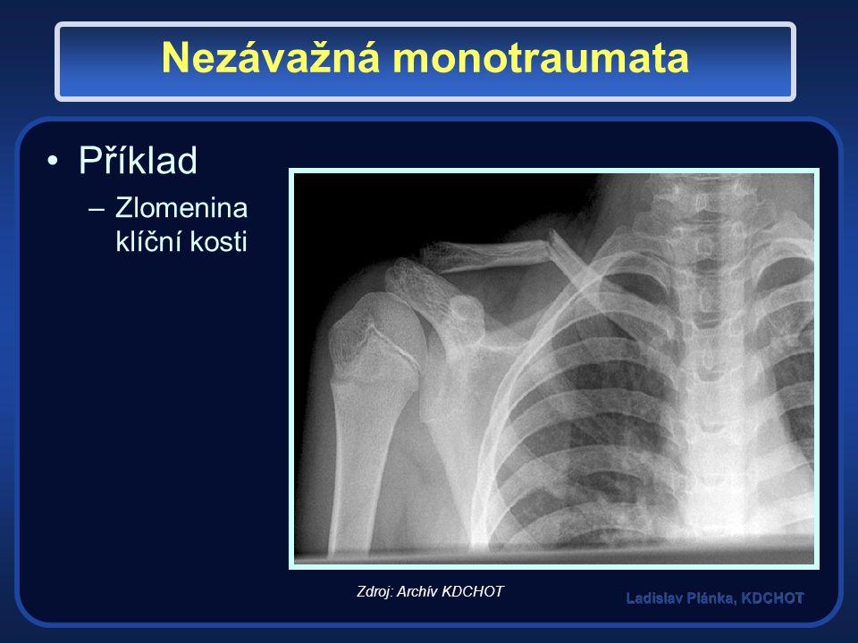 Nezávažná monotraumata Příklad –Zlomenina klíční kosti Zdroj: Archív KDCHOT