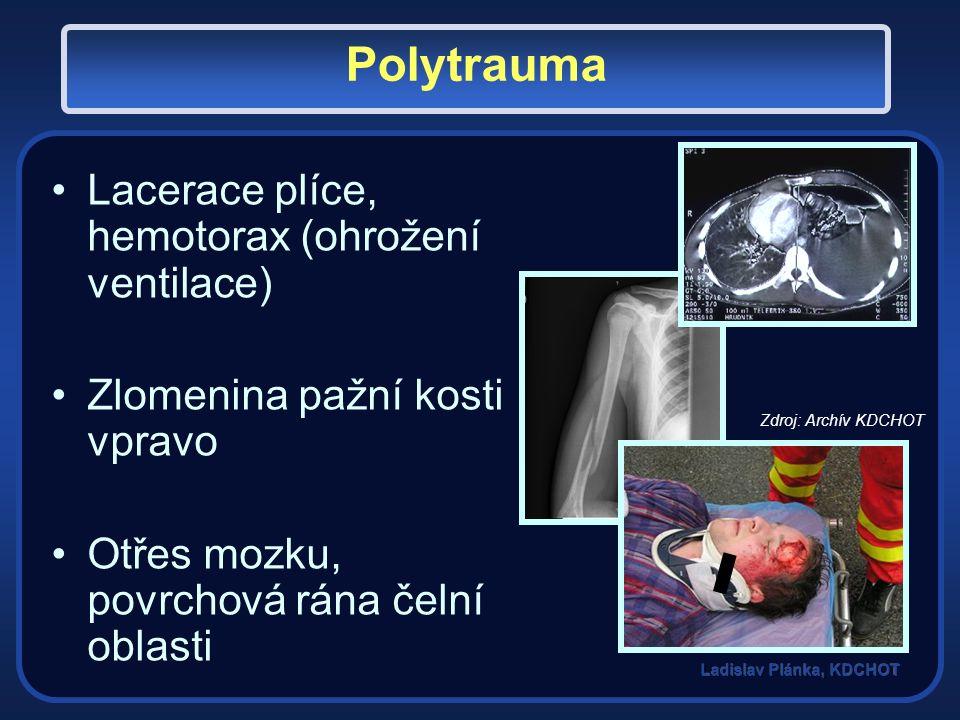 Polytrauma Lacerace plíce, hemotorax (ohrožení ventilace) Zlomenina pažní kosti vpravo Otřes mozku, povrchová rána čelní oblasti Zdroj: Archív KDCHOT