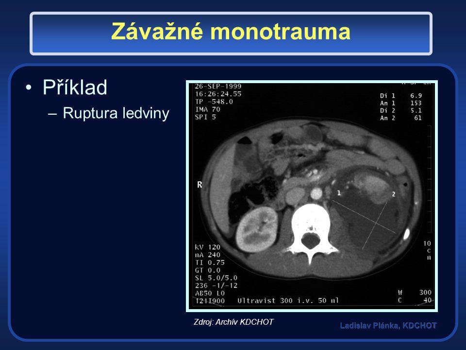 Závažné monotrauma Příklad –Ruptura ledviny Zdroj: Archív KDCHOT
