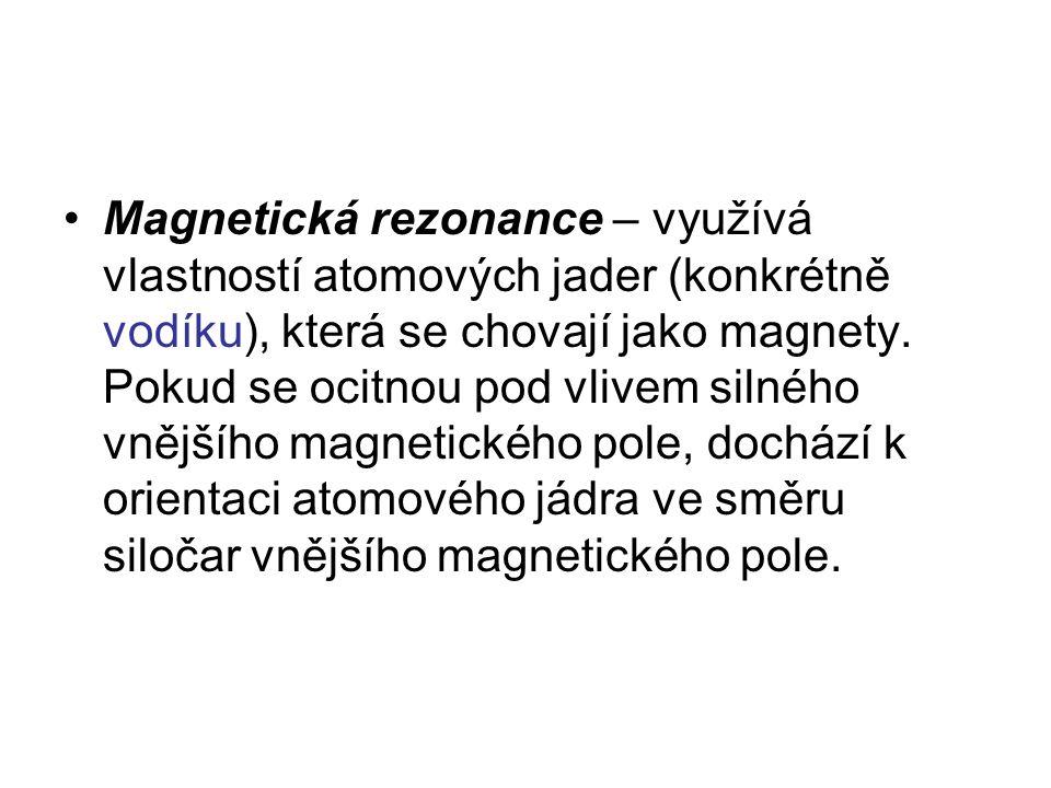 Magnetická rezonance – využívá vlastností atomových jader (konkrétně vodíku), která se chovají jako magnety.