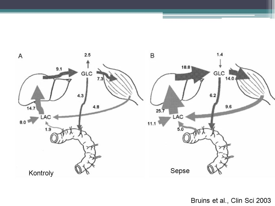 Výsledky: Bruins et al., Clin Sci 2003 Kontroly Sepse