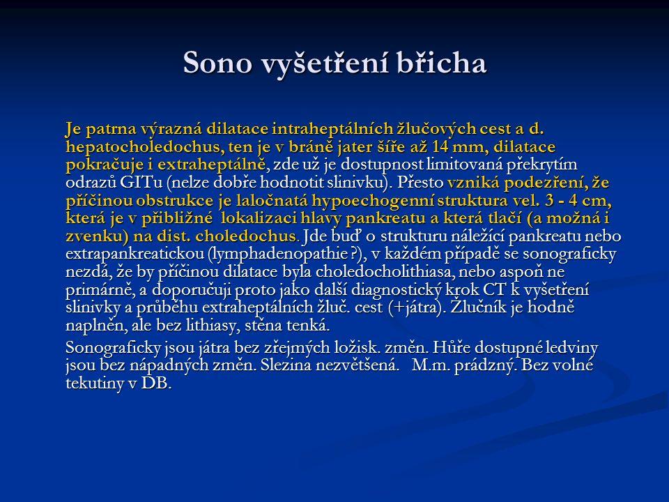 Sono vyšetření břicha Je patrna výrazná dilatace intraheptálních žlučových cest a d.