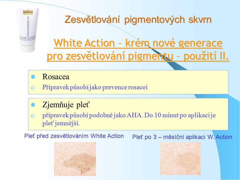 Zesvětlování pigmentových skvrn White Action – krém nové generace pro zesvětlování pigmentu – použití II. Rosacea a) Přípravek působí jako prevence ro