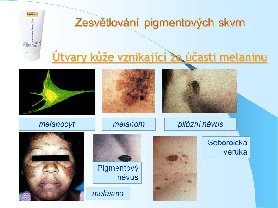 Zesvětlování pigmentových skvrn Útvary kůže vznikající za účasti melaninu melanocytmelanom melasma Pigmentový névus pilózní névus Seboroická veruka