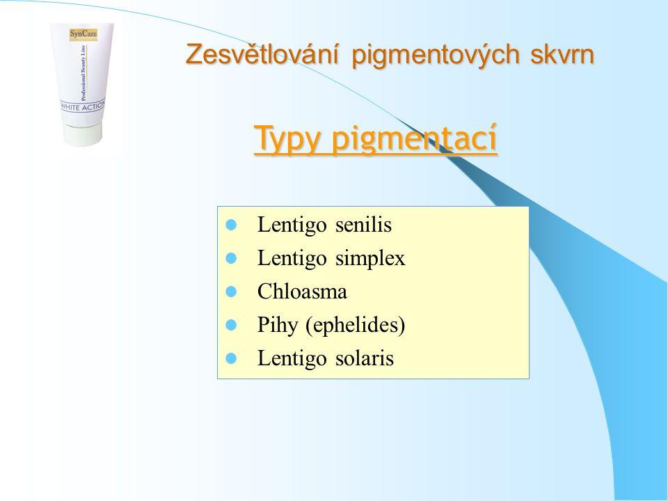 Zesvětlování pigmentových skvrn Typy pigmentací Lentigo senilis Lentigo simplex Chloasma Pihy (ephelides) Lentigo solaris