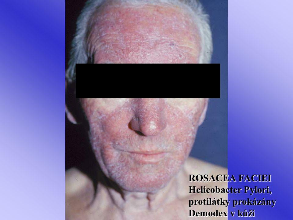ROSACEA FACIEI Helicobacter Pylori, protilátky prokázány Demodex v kůži