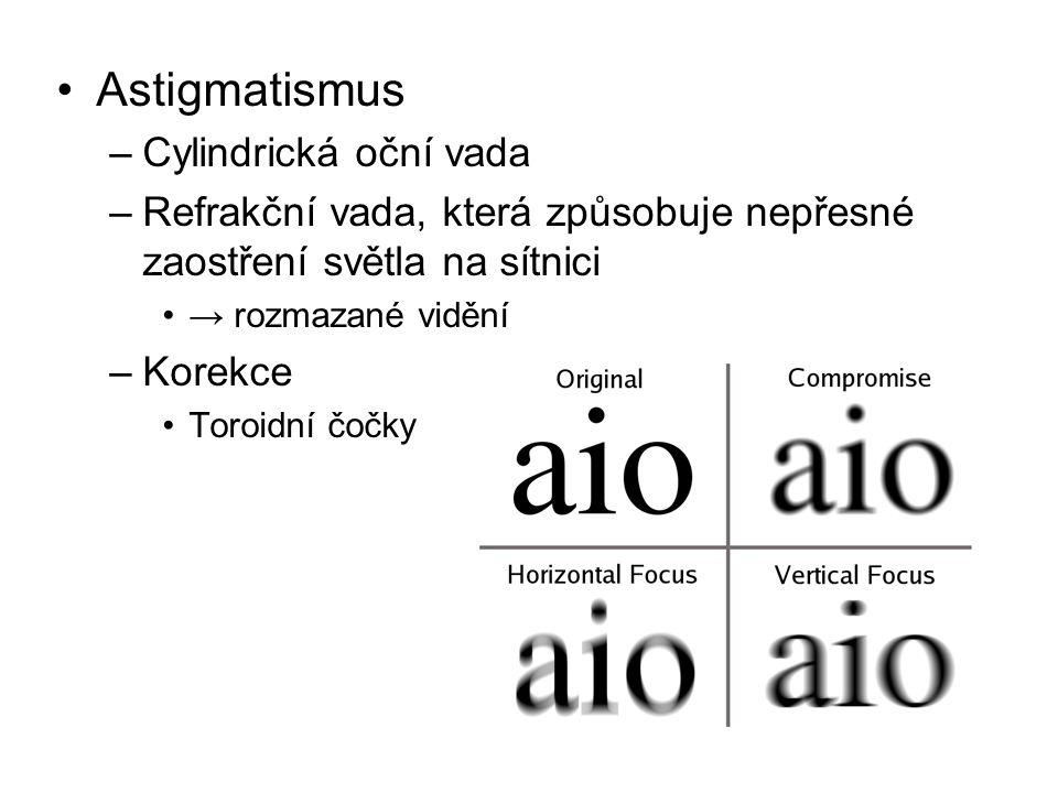 Astigmatismus –Cylindrická oční vada –Refrakční vada, která způsobuje nepřesné zaostření světla na sítnici → rozmazané vidění –Korekce Toroidní čočky