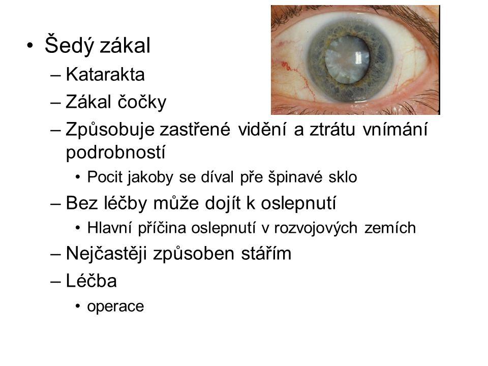 Šedý zákal –Katarakta –Zákal čočky –Způsobuje zastřené vidění a ztrátu vnímání podrobností Pocit jakoby se díval pře špinavé sklo –Bez léčby může dojít k oslepnutí Hlavní příčina oslepnutí v rozvojových zemích –Nejčastěji způsoben stářím –Léčba operace
