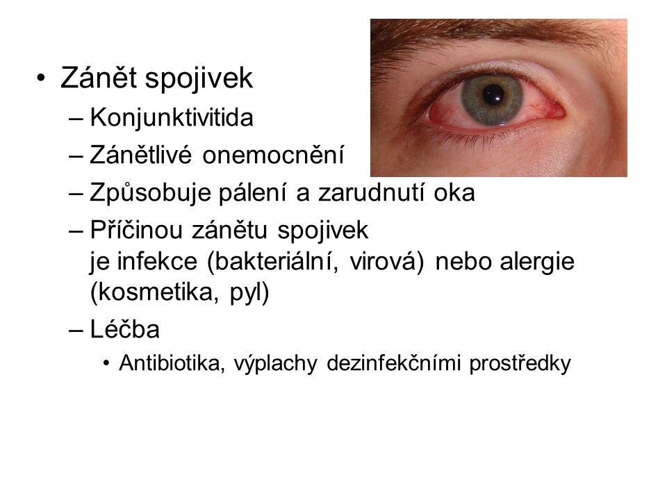 Zánět spojivek –Konjunktivitida –Zánětlivé onemocnění –Způsobuje pálení a zarudnutí oka –Příčinou zánětu spojivek je infekce (bakteriální, virová) nebo alergie (kosmetika, pyl) –Léčba Antibiotika, výplachy dezinfekčními prostředky