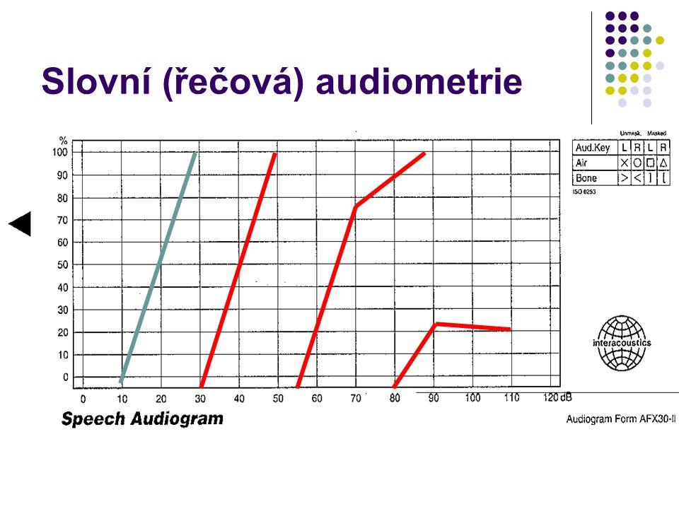 Slovní (řečová) audiometrie