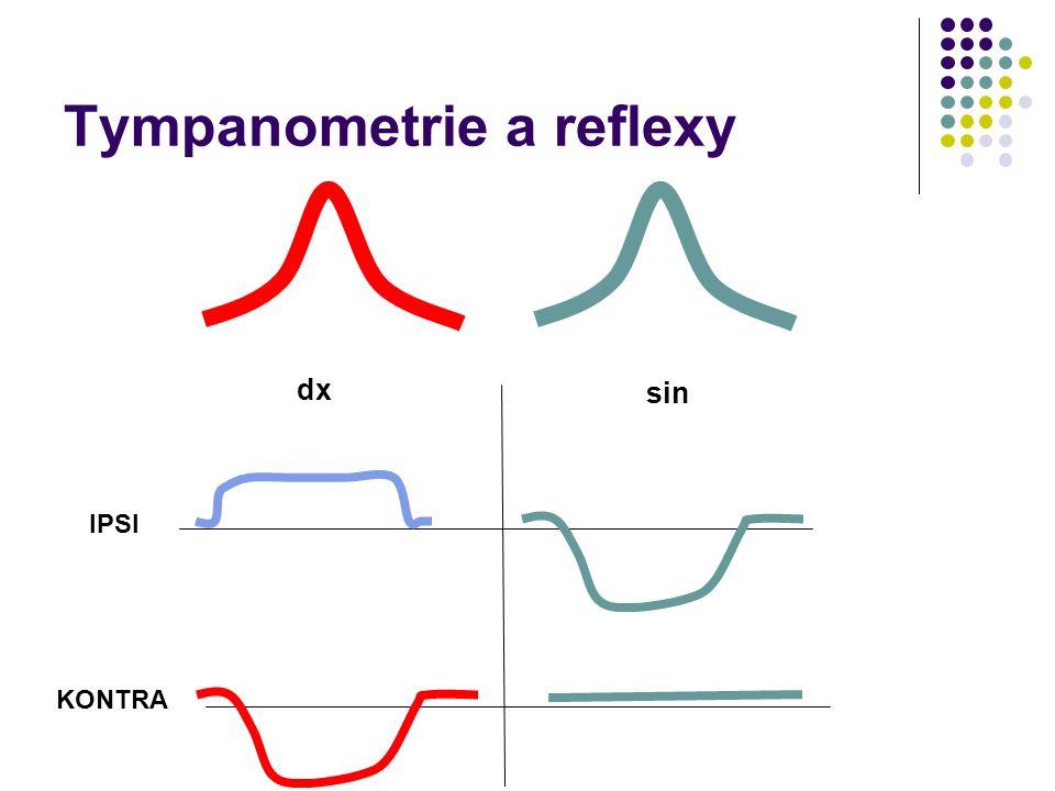 Tympanometrie a reflexy IPSI KONTRA dx sin
