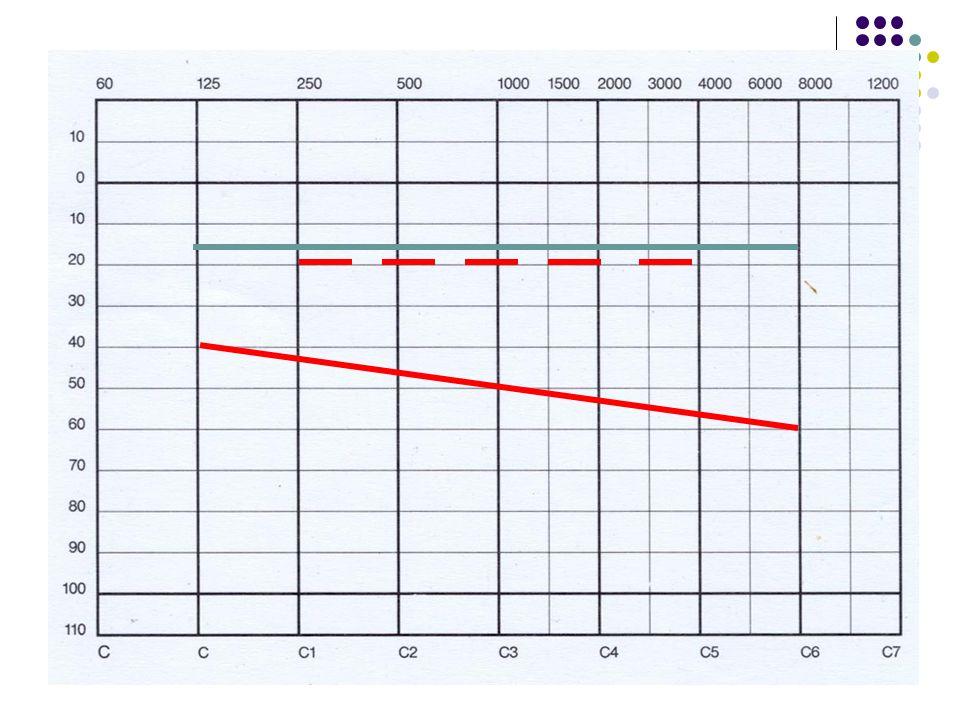 Schopnost směrového slyšení vázána na binaurální poslech vyvinuta již od 3-7 měsíců věku nejmenší detekovatelný posun zdroje zvuku v prostoru u zdravých osob (MAA) činí 1-2 úhlové stupně je funkcí frekvence a směru přicházejícího zvuku