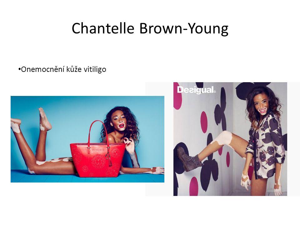 Chantelle Brown-Young Onemocnění kůže vitiligo